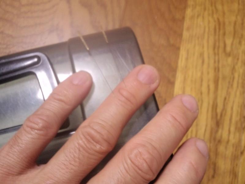 ばね指(弾発指)の鍼治療は有効
